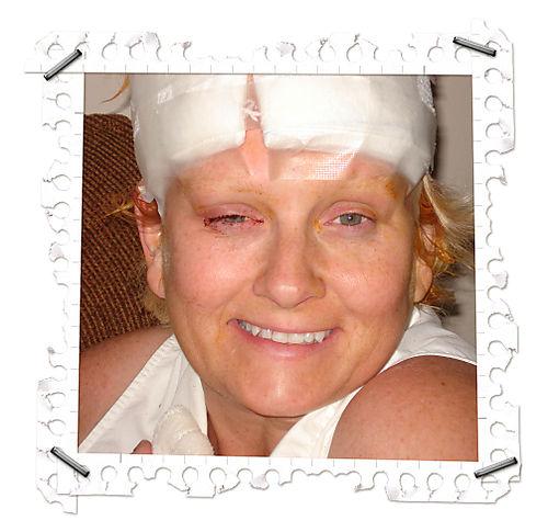 Melissaaftersurgery
